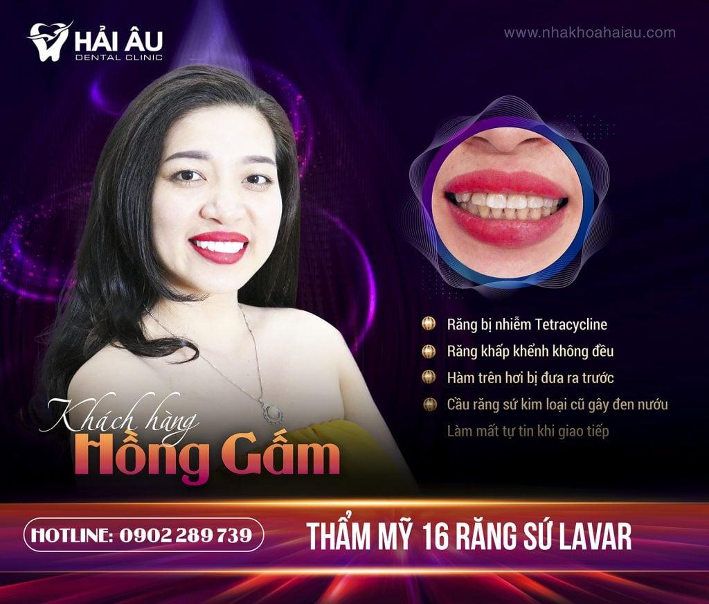 boc-rang-su-tham-my-16-lavar